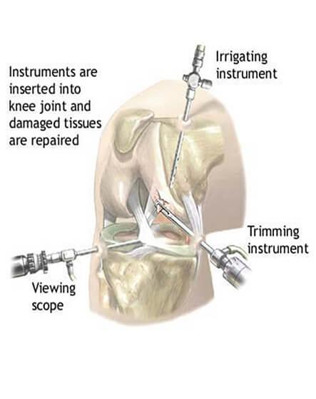 Arthroscopy Procedure